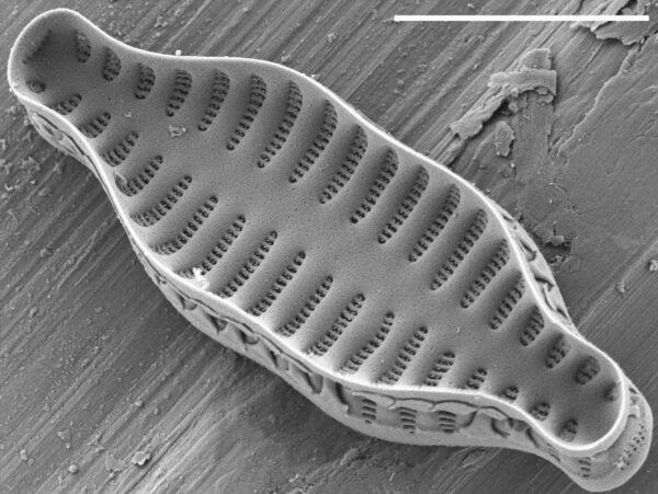 Staurosira construens var binodis SEM2