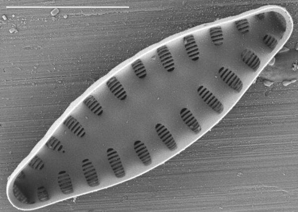 Staurosirella leptostauron var dubia SEM1