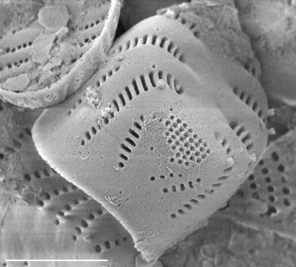 Staurosirella leptostauron var dubia SEM2