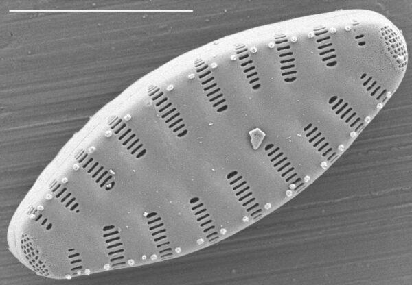 Staurosirella leptostauron var dubia SEM3