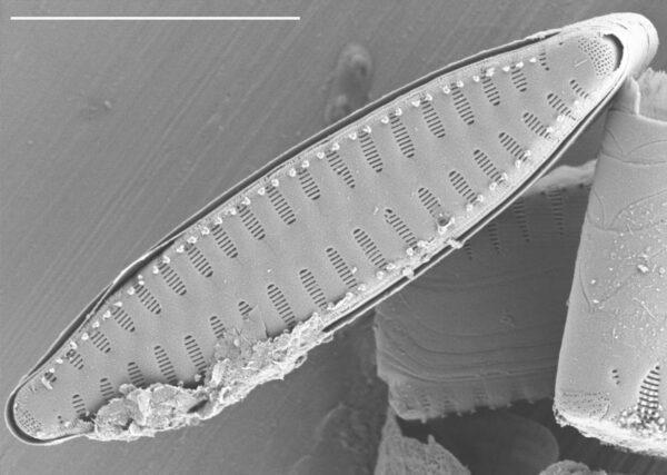 Staurosirella leptostauron var dubia SEM4
