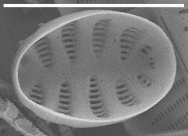 Staurosirella pinnata SEM1