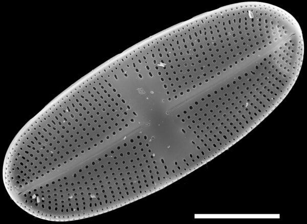 Psammothidium alpinum SEM2