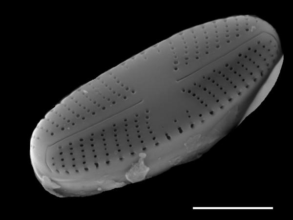 Sellaphora atomoides SEM1