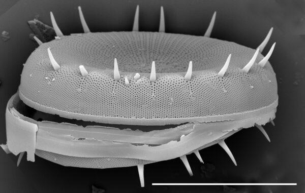 Stephanodiscus yellowstonensis SEM3