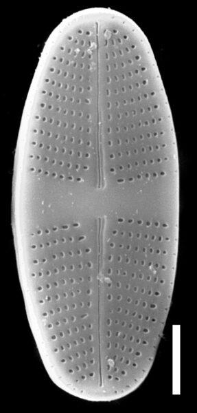 Psammothidium lauenburgianum SEM3