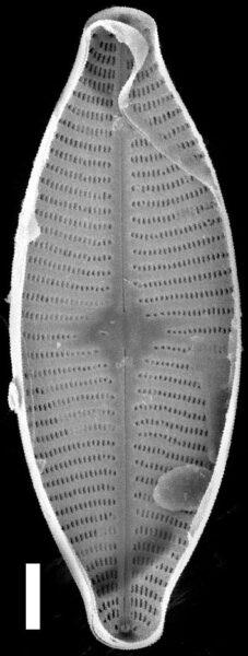 Geissleria lateropunctata SEM1