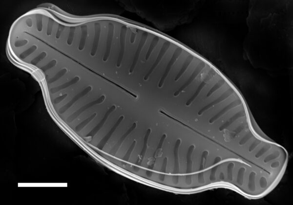 Karayevia laterostrata SEM1