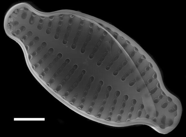 Karayevia laterostrata SEM2