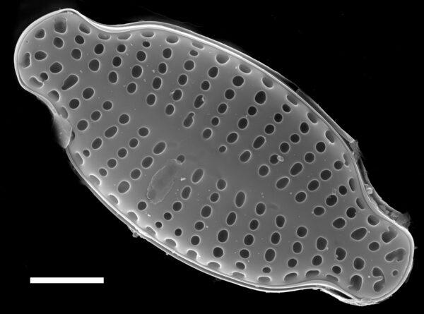 Karayevia laterostrata SEM3