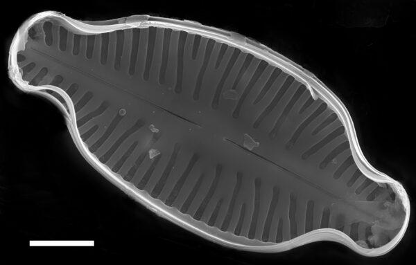 Karayevia laterostrata SEM4