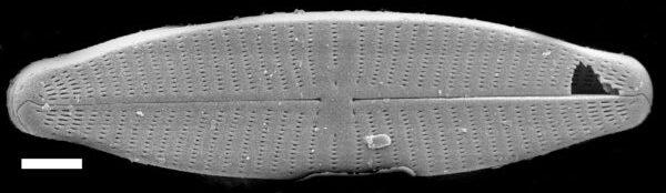Geissleria punctifera SEM1