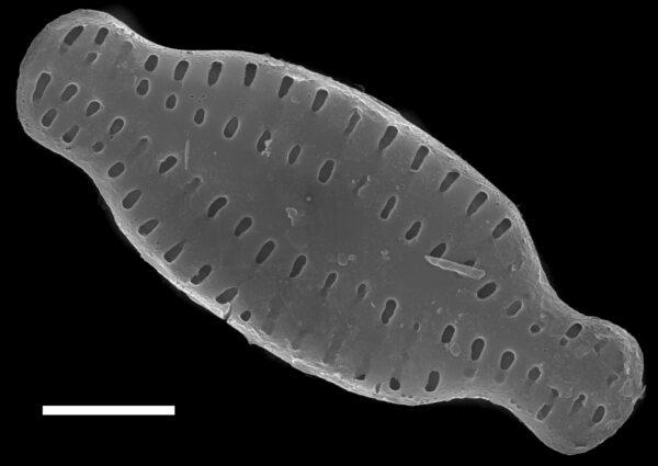 Karayevia amoena SEM1