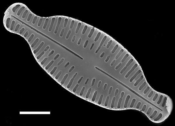 Karayevia amoena SEM3