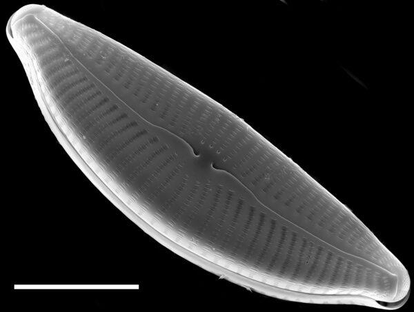 Cymbella turgidula SEM2
