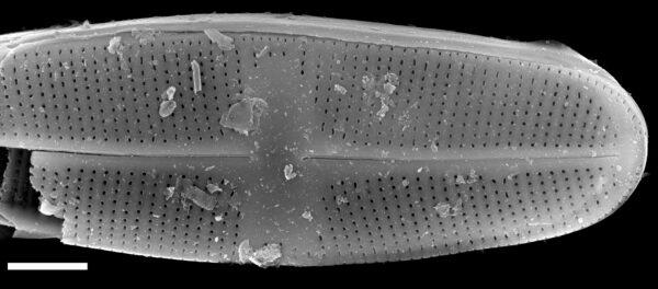 Psammothidium chlidanos SEM1