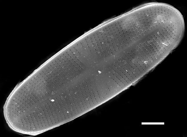 Psammothidium chlidanos SEM2