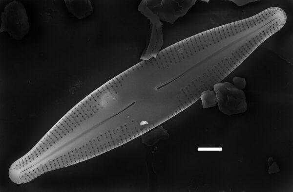 Nupela poconoensis SEM3