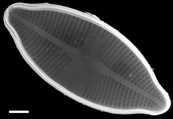 Psammothidium harveyi SEM1