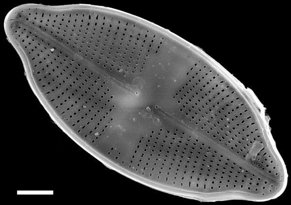 Psammothidium harveyi SEM2