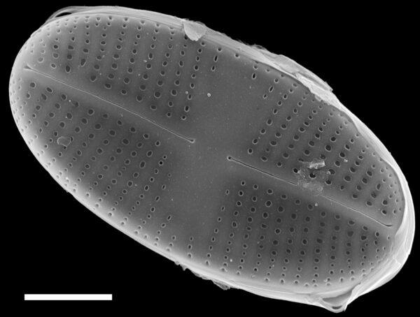 Psammothidium pennsylvanicum SEM3