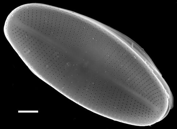 Psammothidium helveticum SEM2