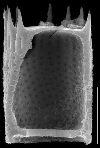 Aulacoseira subarctica SEM3