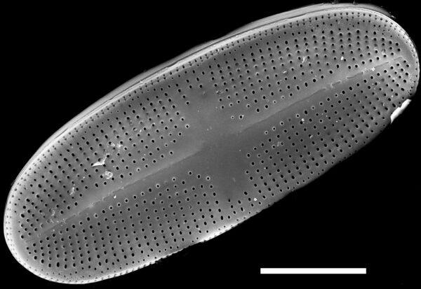 Psammothidium alpinum SEM1